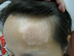 白癜风专科医院:女性预防白癜风的措施